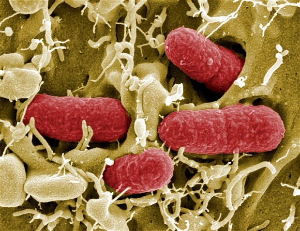 E.coli has developed resistance to last-line of antibiotics, warn scientists