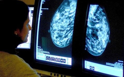 Research breakthrough could help detect signs of breast cancer five years sooner