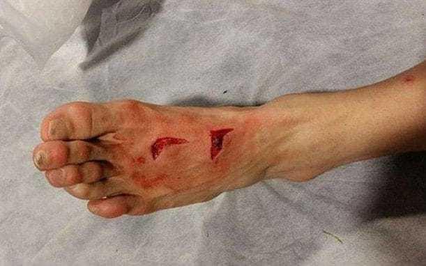 Porto player Hector Herrera's foot has seen better days