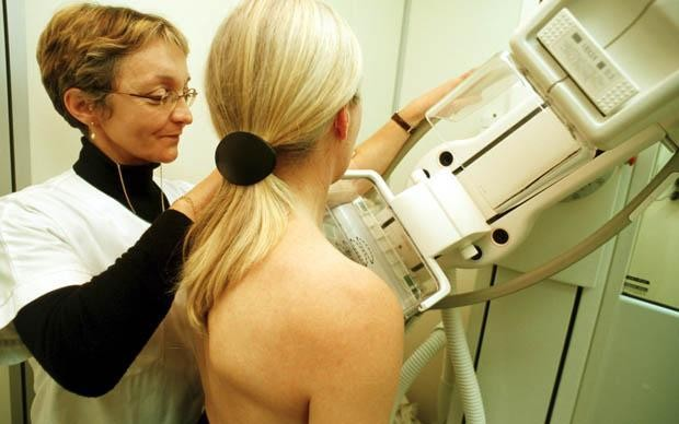 Women urged to wait until 45 for breast cancer screenings