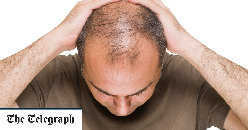Bald men at higher risk of severe case of Covid-19, research finds
