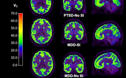Suicidal thoughts may be detectable by brain scan, scientists find