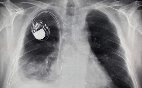 Pacemakers powered by heartbeats on the horizon