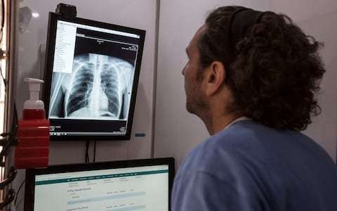Up to $15bn need to control TB as world urged to 'mobilise' against the disease