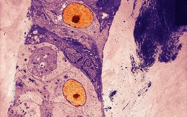 'Astounding' study claims major breakthrough in cure for terminal breast cancer