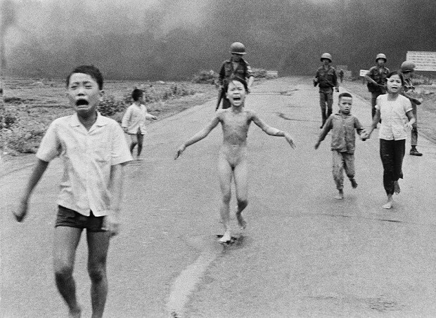 New laser treatment aims to ease pain of Vietnam's 'Napalm girl'