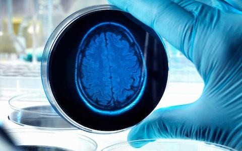 Alzheimers' disease could be spotted in advance, research suggests