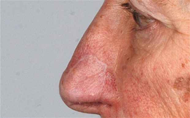 Medical first as noses are 'regrown'