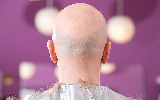 No, really. Scientists have finally found a cure for baldness (probably)