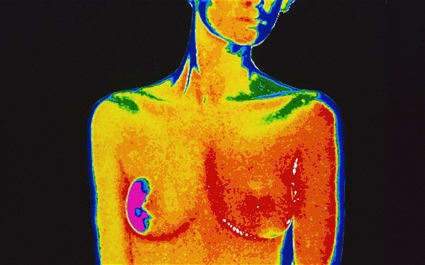 Breast cancer risk can be predicted using new technique