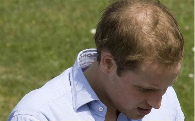 Cure for thinning hair? Scientists find plucking stimulates huge growth spurt