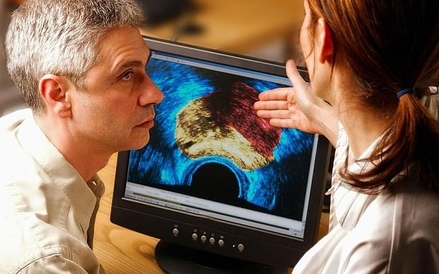 Prostate cancer test which detects tumour size could save thousands of lives