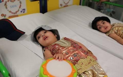 Conjoined twins separated after 50 hours of surgery at Great Ormond Street Hospital
