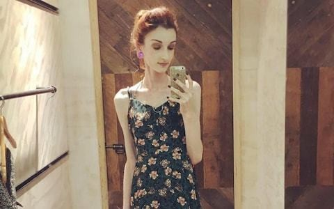 Anorexia deaths not being properly recorded by NHS, inquest hears