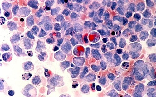 Scientists uncover 11 subtypes of acute myeloid leukaemia during gene study