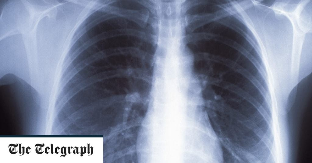 Chest X-rays miss nearly quarter of lung cancers, review finds