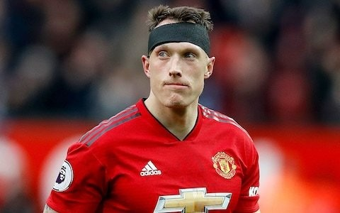 New concussion study reveals Premier League players miss just 10 days of action after a head injury