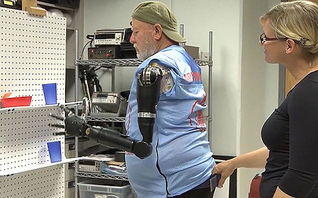 Watch: Double amputee given world's first shoulder-level mind-controlled arms