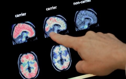 Big data can help us find the cure for Alzheimer's
