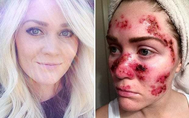 Skin cancer sufferer shares shocking selfie