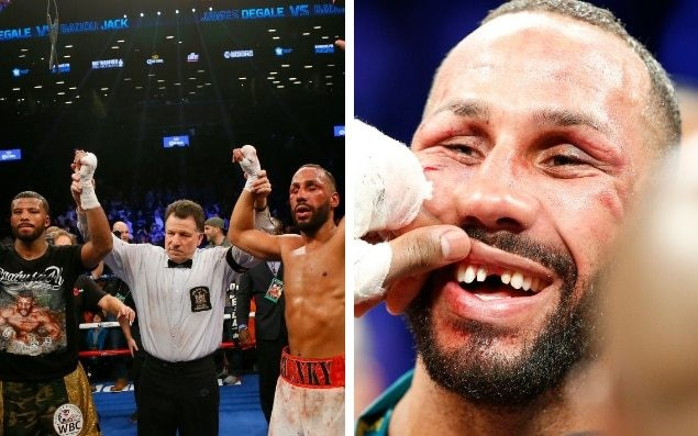 James DeGale and Badou Jack draw unification title fight as DeGale gets tooth knocked out