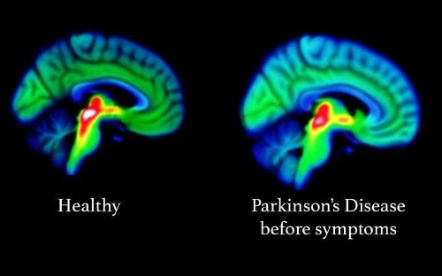 Parkinson's disease spotted in brain more than a decade before symptoms emerge