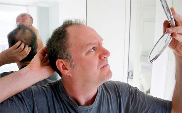Baldness treatment 'a step closer'