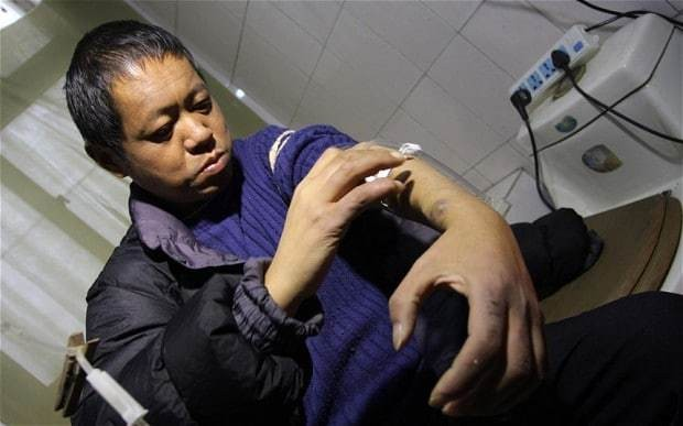 Chinese man kept alive by self-built dialysis machine