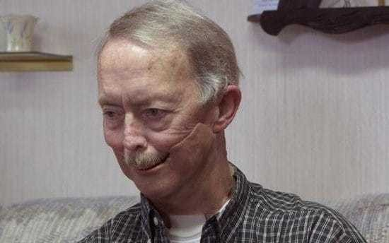 Cancer patient fitted with 3D printed artificial jaw