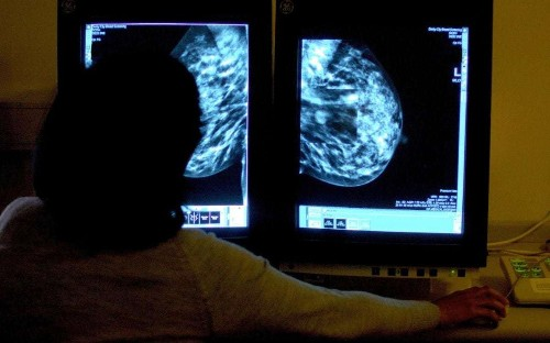 Joy as first breast cancer drug approved for widespread use in ten years