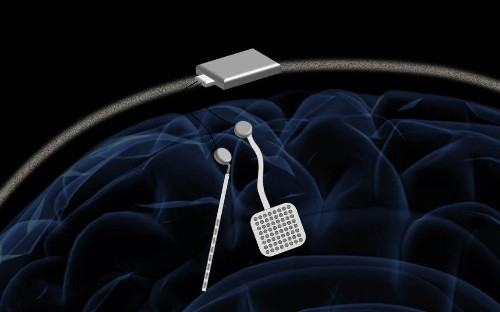 Brain 'pacemaker' could prevent tremors and seizures for Parkinson's and epilepsy sufferers