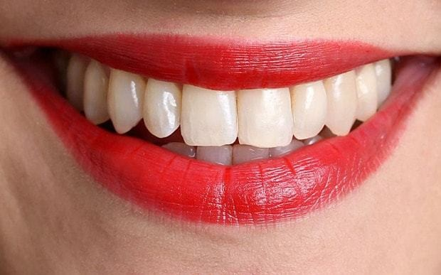 Rise in cosmetic dentistry spending makes dentists smile