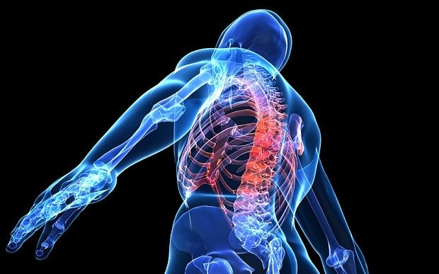Cure for chronic pain found: World first as patient fitted with permanent spinal cord implant