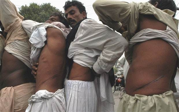 Organ trafficking: a deadly trade