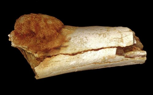 World's oldest example of cancer found in 1.7 million-year-old fossil