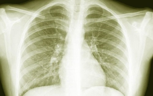 Agonising mystery lung disease twice more widespread than previously thought