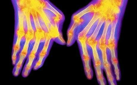 Electric pulse therapy lessons pain of rheumatoid arthritis, study shows