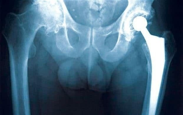 Hip surgery does not improve physical activity levels, research finds