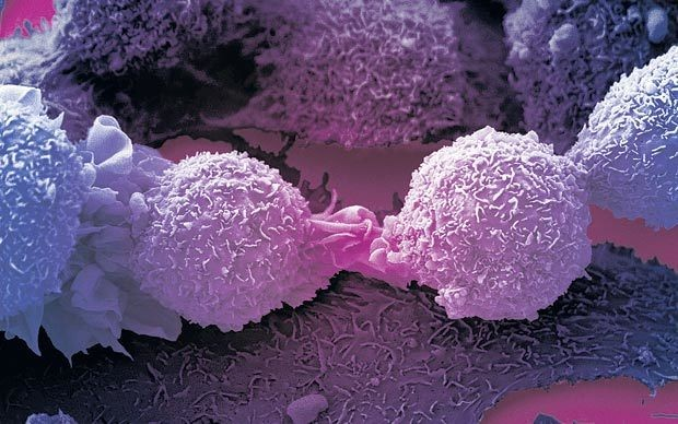 UK cancer survival worst in western Europe
