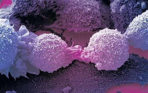 Immune cell that kills most cancers discovered by accident by British scientists