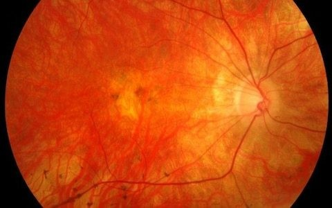 Pioneering gene injection restores sight in patients with most common form of inherited blindness