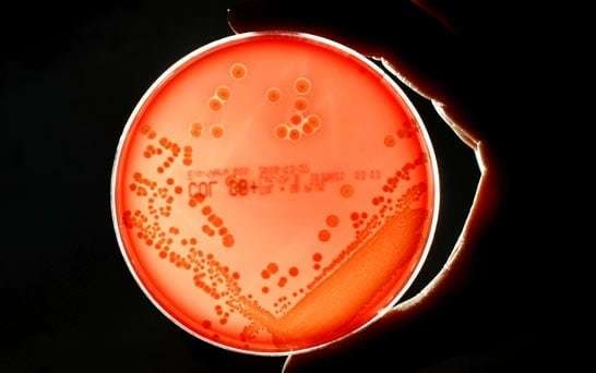Deadly bacterium 'released from US high-security lab'