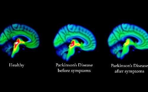 Alzheimer's Society 'spent £750,000 on staff payouts' in return for NDAs