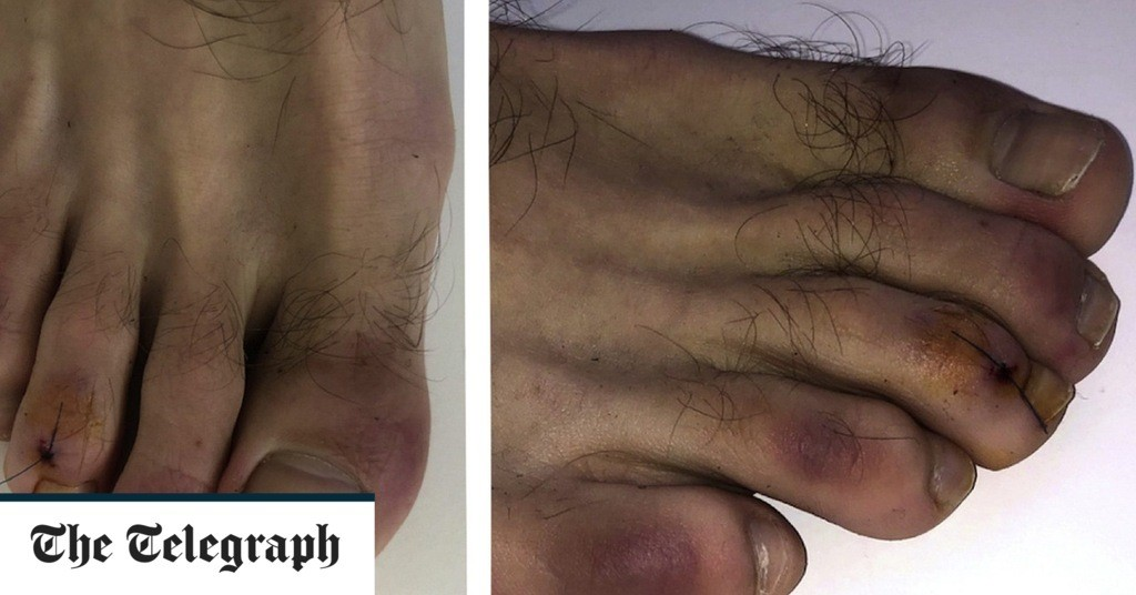 Covid toes: People infected with coronavirus may develop red and swollen feet which turn purple