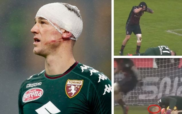 Joe Hart suffers horrific head injury but plays on for Torino against AC Milan