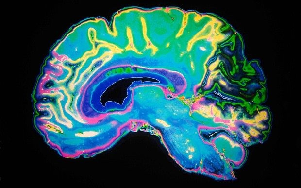 How a damaged brain can be healed