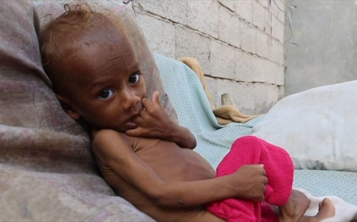 Some 85,000 children in Yemen may have died from hunger, charity finds