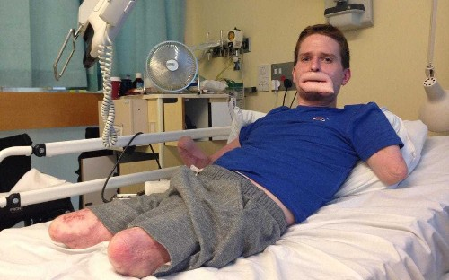 British man has microchip embedded in his body to give him his independence back