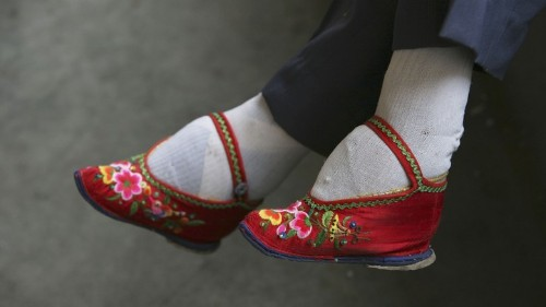 The Neglected Consequences of Foot-Binding