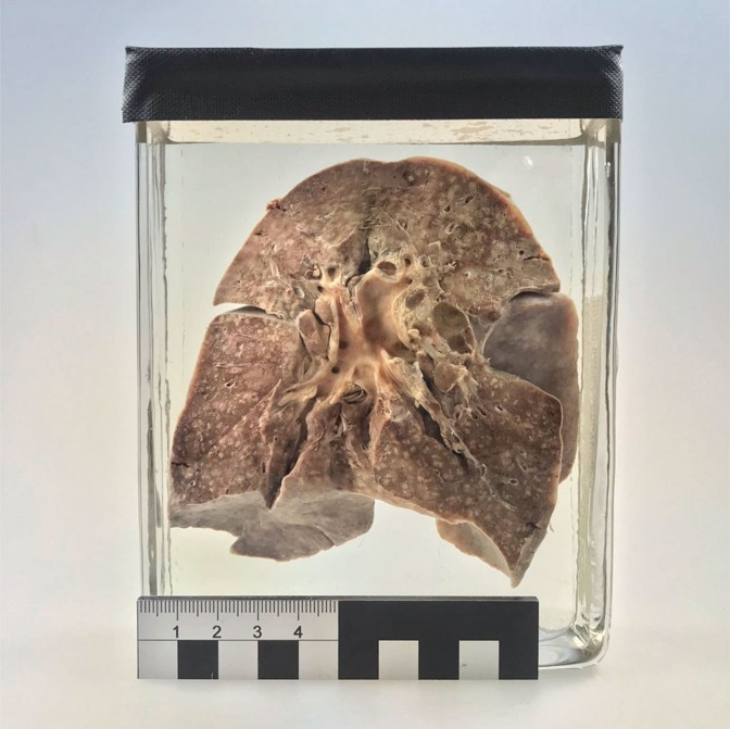 The Virus Buried in a 100-Year-Old Lung